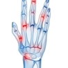 How To Manage Arthritis Pain Effectively