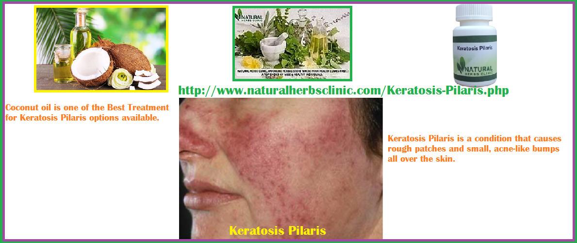 Keratosis Pilaris Coconut Oil | Best Treatment