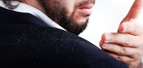 9 Home Remedies for Dandruff - Getting Rid of Dandruff Naturally | Green Consumer Forum | Scoop.it