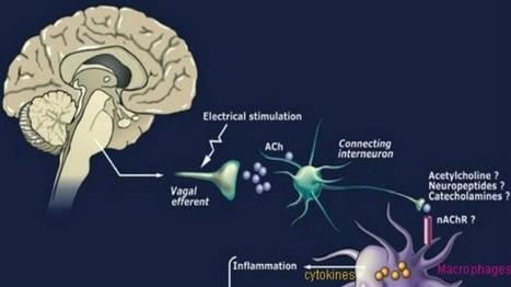 Vagus Nerve Stimulation Ameliorates Disease Activity in a Rodent Model of Rheumatoid Arthritis | Neuro-Immune Regulatory Pathways | Scoop.it