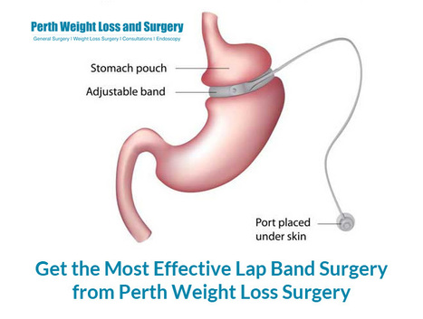 Perth Weight Loss Surgery Scoop It