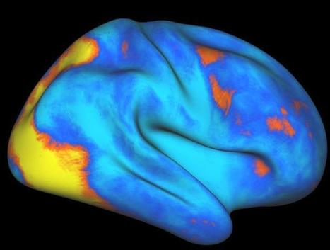 Researchers identify previously unknown human-specific attention network in the brain. | Coaching & Neuroscience | Scoop.it