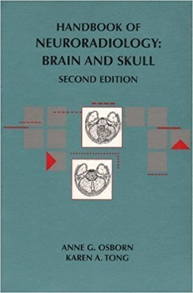 Handbook of head and neck imaging harnsberger p handbook of head and neck imaging harnsberger pdf 39 fandeluxe Choice Image