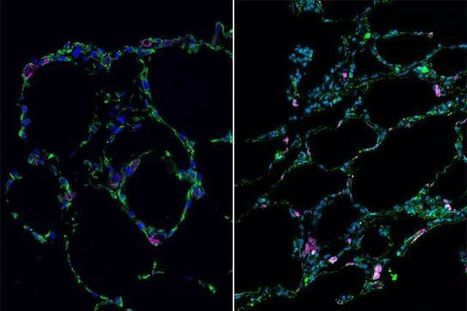 UCLA researchers use stem cells to grow 3-D lung-in-a-dish | Amazing Science | Scoop.it