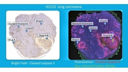 New device tests multiple chemotherapy drugs in a patient's living tumor | Longevity science | Scoop.it