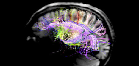 Study examines how brain 'reboots' itself to consciousness after anesthesia | Social Neuroscience Advances | Scoop.it