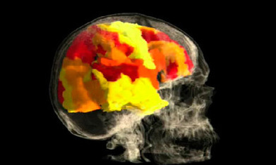Vaughan Bell: the trouble with brain scans | Brains & Things | Scoop.it