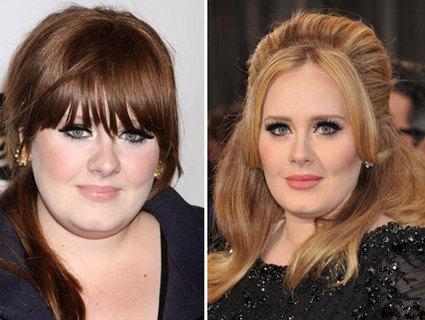 Rhinoplasty Adele Nose Job In Celebrity Plastic Surgery Scoop It