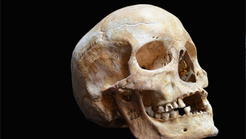 Ancient Leprosy Genome Reconstructed | microBIO | Scoop.it