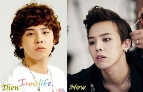 G Dragon Big Bang Plastic Surgery Before And Af