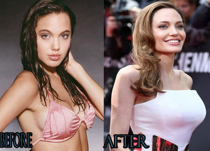Angelina Jolie Breast Implants Before And After