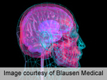 Scientists Complete 1st Map of 'Emotional Intelligence' in the Brain: MedlinePlus | Genética humana | Scoop.it