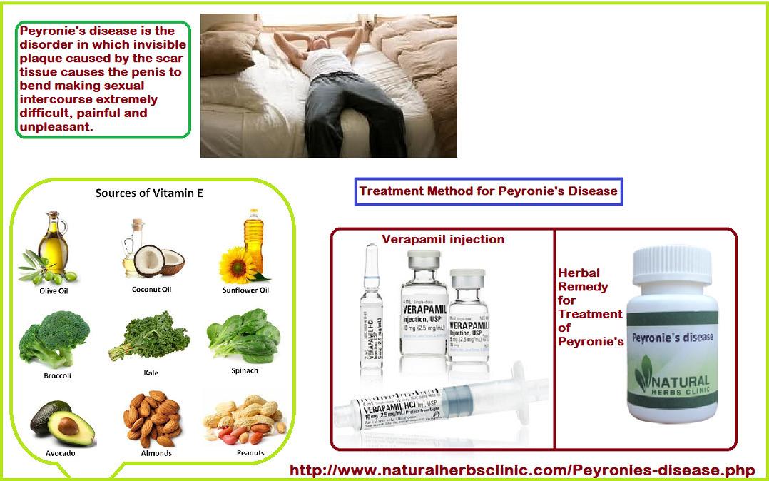 Peyronie's Disease Vitamin E | Treatment of Pey