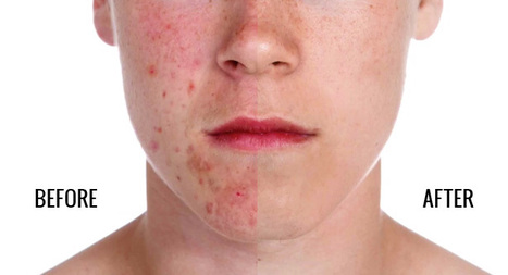 A Quick and Simple Technique For Removing Acne in Photoshop @ Weeder | Photo Editing Software and Applications | Scoop.it