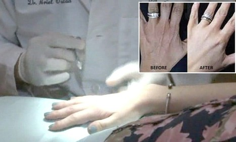 Cosmetic HANDLIFTS increase thanks to engagement ring selfies | Kickin' Kickers | Scoop.it
