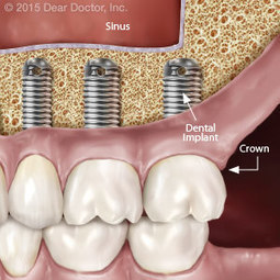 Using Sinus Surgery to Stimulate Bone Growth for Implants - Kent R. Mauduit D.D.S. | Dental Implants | Scoop.it
