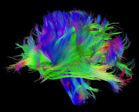 A Neuroscientist's Radical Theory of How Networks Become Conscious | Consciousness | Scoop.it