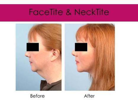 necktite before after' in Harley Street Skin Clinic | Scoop it