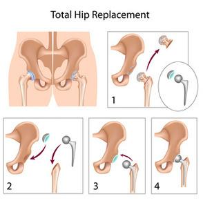 Stryker Hip Recall | Stryker Hip Replacement News | Scoop.it