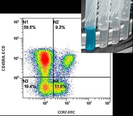 GECLID: crece el esquema de Inmunofenotipo de Leucemias y Linfomas   Immunopathology & Immunotherapy   Scoop.it