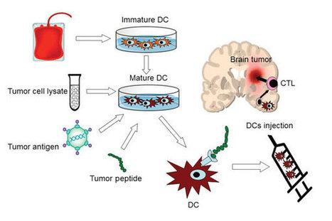 Dendritic Cell Vaccines as Glioblastoma Therapy
