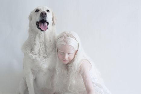 I Captured The Hypnotizing Beauty Of Albino People | En vrac | Scoop.it