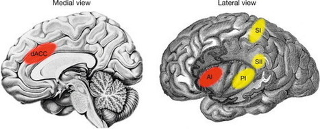How the Brain Feels the Hurt of Heartbreak   SciTech Connect   Science technology and reaserch   Scoop.it