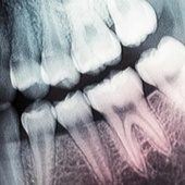 Forget fillings, scientists just discovered how to regrow full teeth using lasers | LibertyE Global Renaissance | Scoop.it