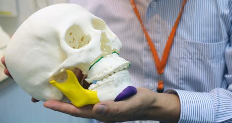 Le marché de l'impression 3D dans le médical évalué à $2,3Mi - 3Dnatives   Jisseo :: Imagineering & Making   Scoop.it