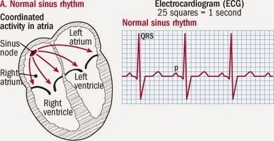 Atrial Fibrillation | Urgent Care Clinic Houston | Scoop.it