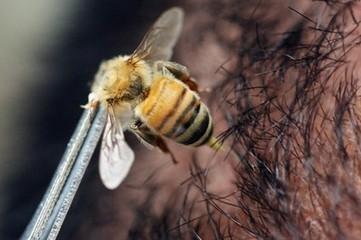 Study: Bee Venom Kills HIV [VIDEO] | EduTech Chat | Scoop.it