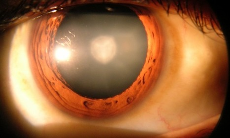 Eye drops could clear up cataracts using newly identified chemical | Scientific Discovery | Scoop.it