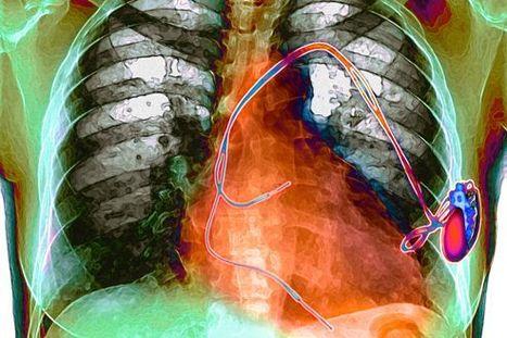 Vers un pacemaker alimenté par les battements du coeur. | Innovation Santé | Scoop.it