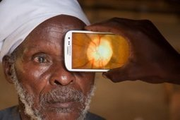 Will Peek's Mobile Eye Exam System Take a Bite Out of Developing World Blindness? | Internet Goodness | Scoop.it