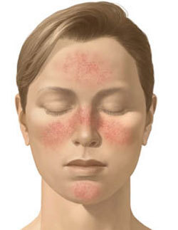 446bacf88a6b Des traitements naturels efficaces contre l acné rosacée