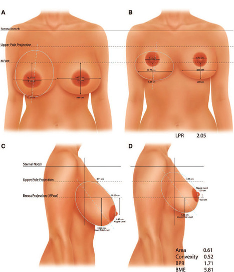 Breast removal cost